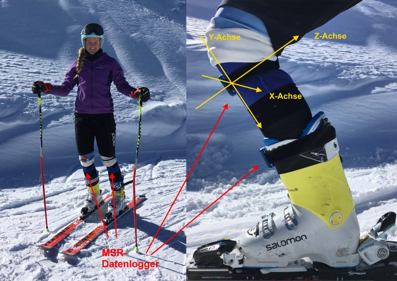 Left: Position of the data loggers on the knee of the skier, both sides. Right: Detailed view of the position of the MSR data loggers. Image Source: Thea Waldleben